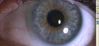Gielen Optique sa - Lentilles
